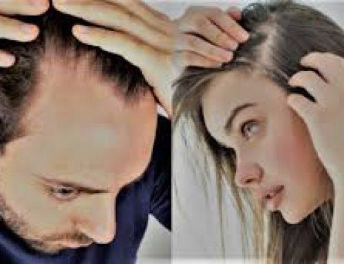 Saç Dökülmesi Nedir? Saç Dökülmesi Çözüm Rehberi